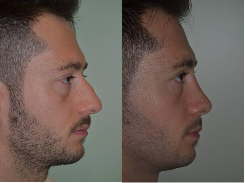 Rinoplastica rimodellamento del naso for Interno del naso